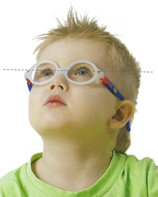 Какую линзу имеют очки корректирующие близорукость