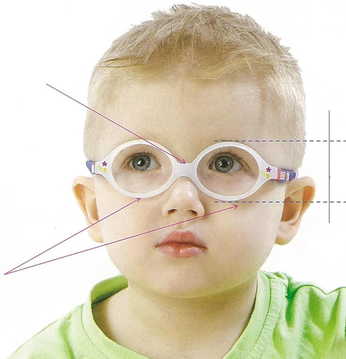 Как восстановить зрение при частичной атрофии зрительного нерва